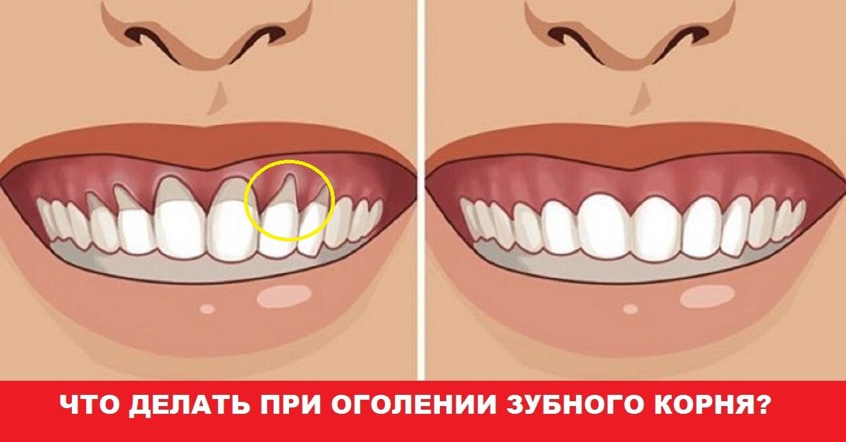 Что делать когда оголяется корень зуба